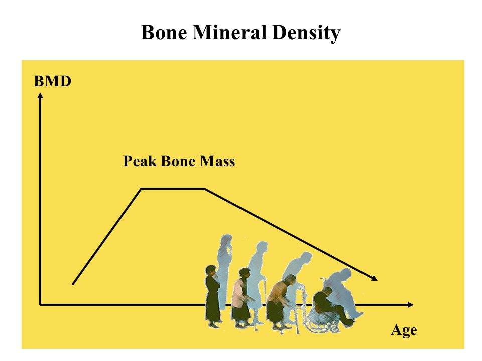 Bone Mineral Density BMD Peak Bone Mass Age