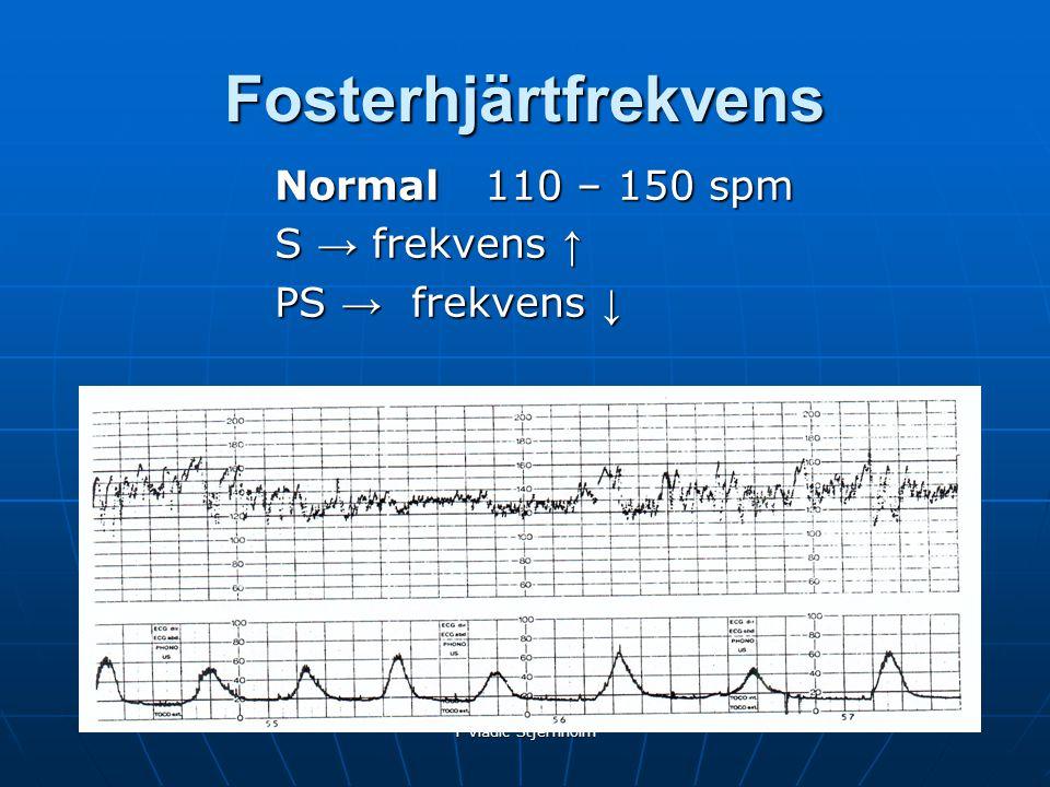 Fosterhjärtfrekvens Normal 110 – 150 spm S → frekvens ↑