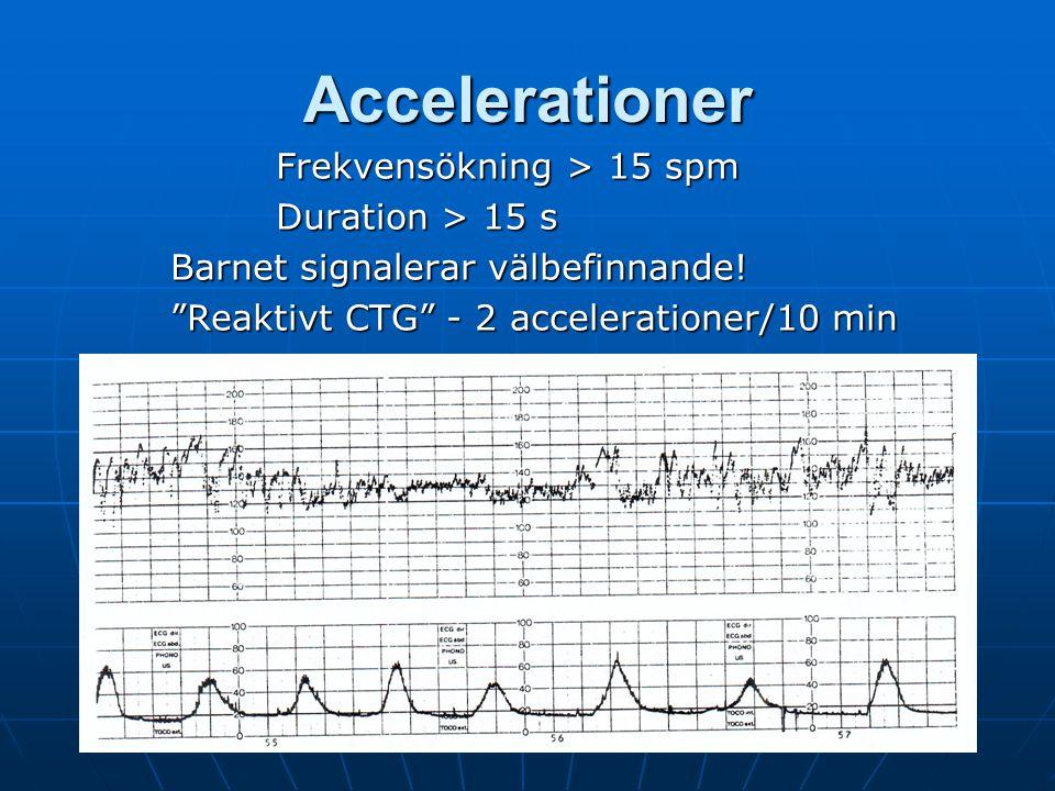 Accelerationer Frekvensökning > 15 spm Duration > 15 s