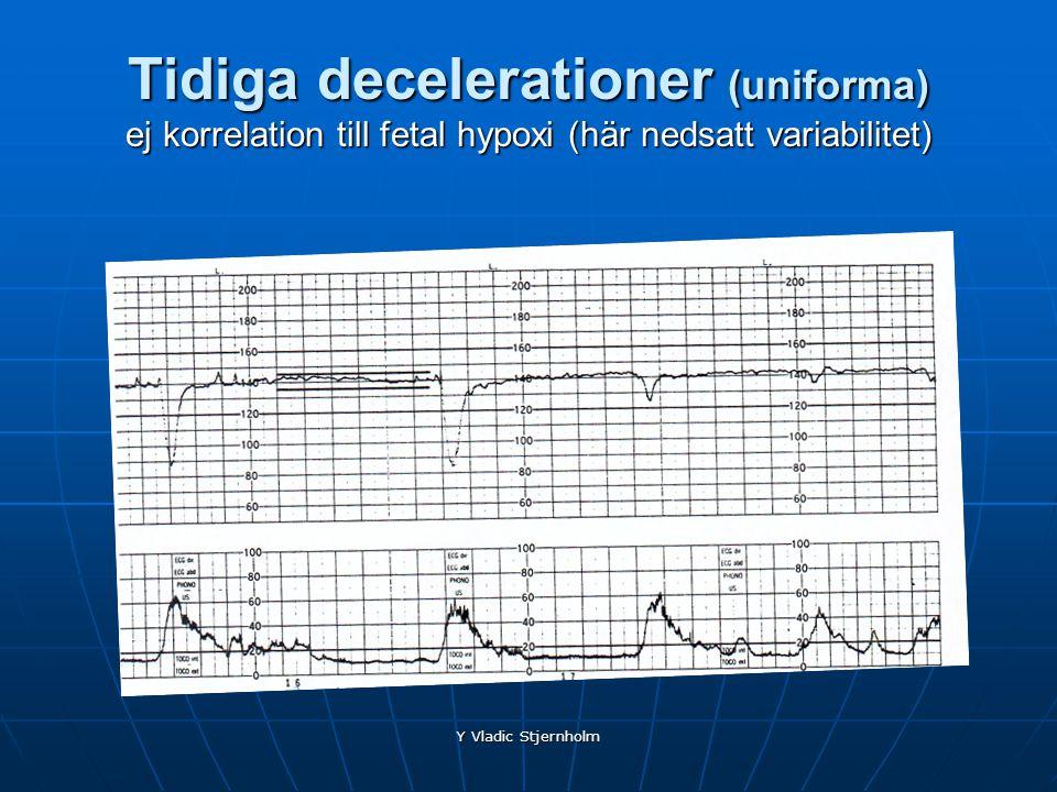 Tidiga decelerationer (uniforma) ej korrelation till fetal hypoxi (här nedsatt variabilitet)