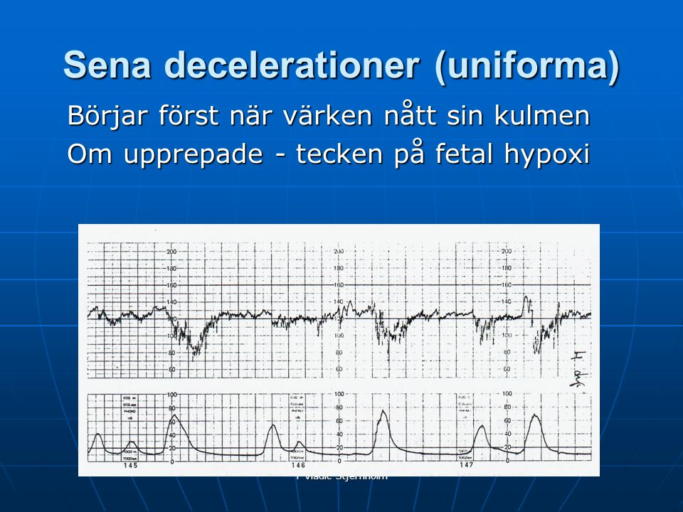 Sena decelerationer (uniforma)