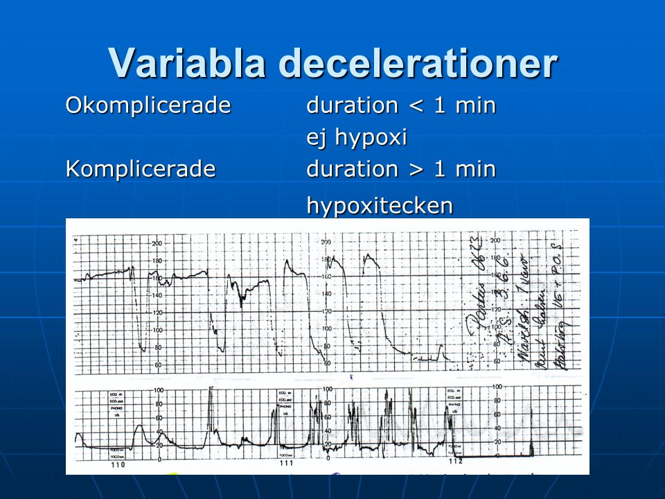 Variabla decelerationer