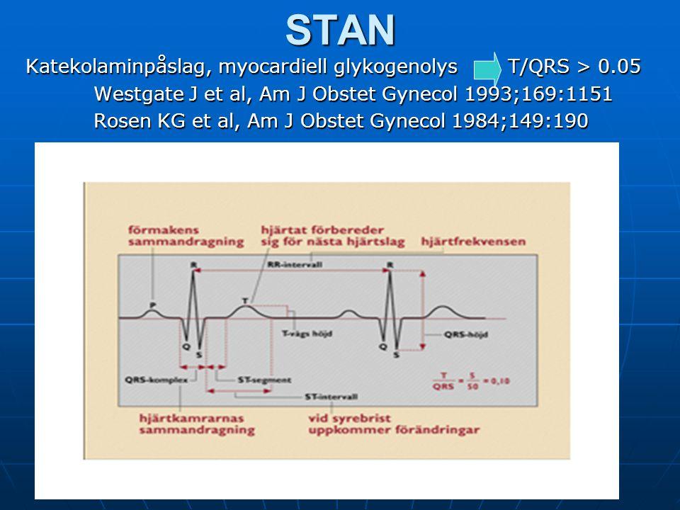 STAN Katekolaminpåslag, myocardiell glykogenolys T/QRS > 0.05