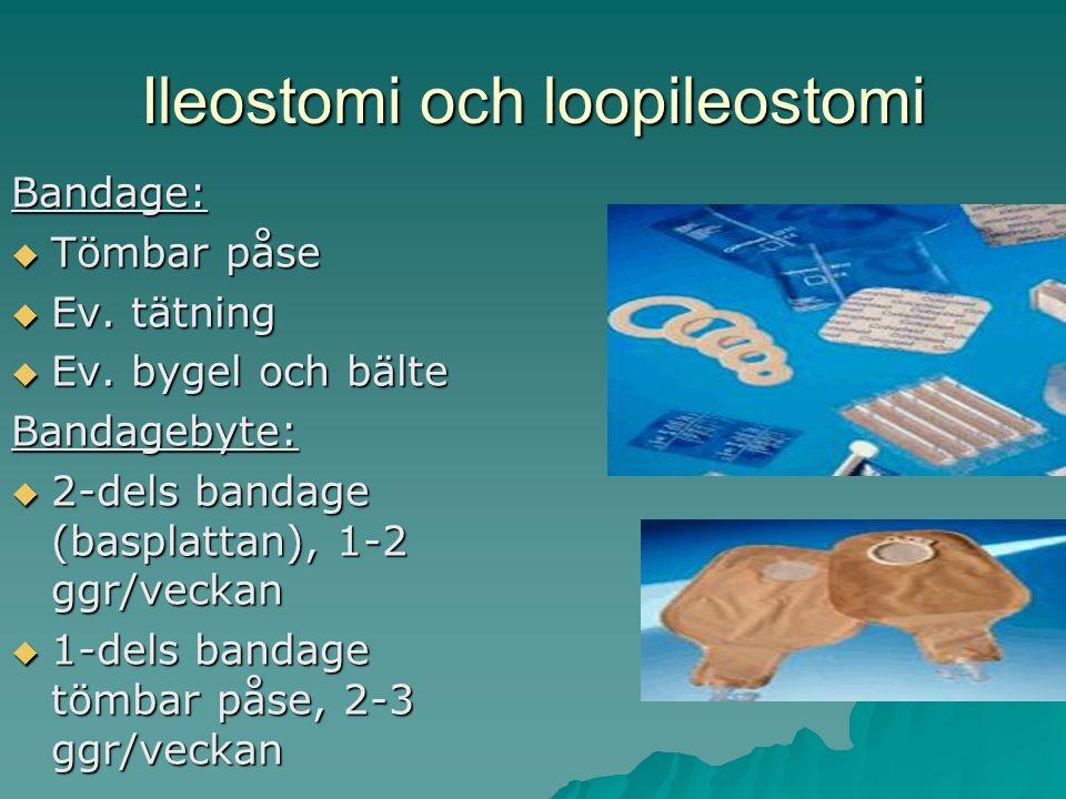Ileostomi och loopileostomi