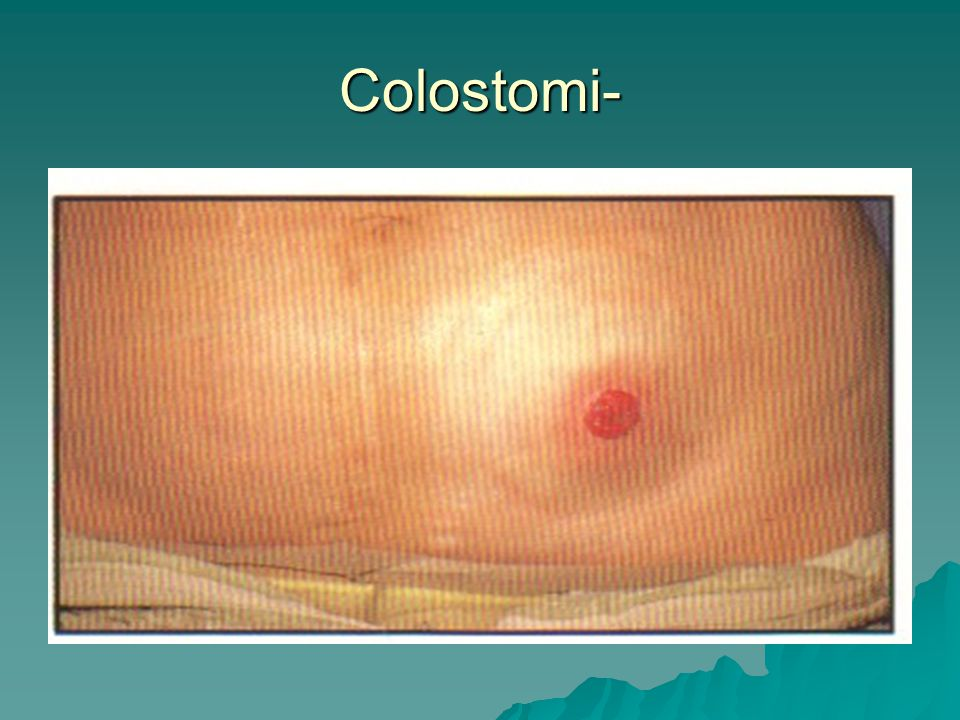 Colostomi-