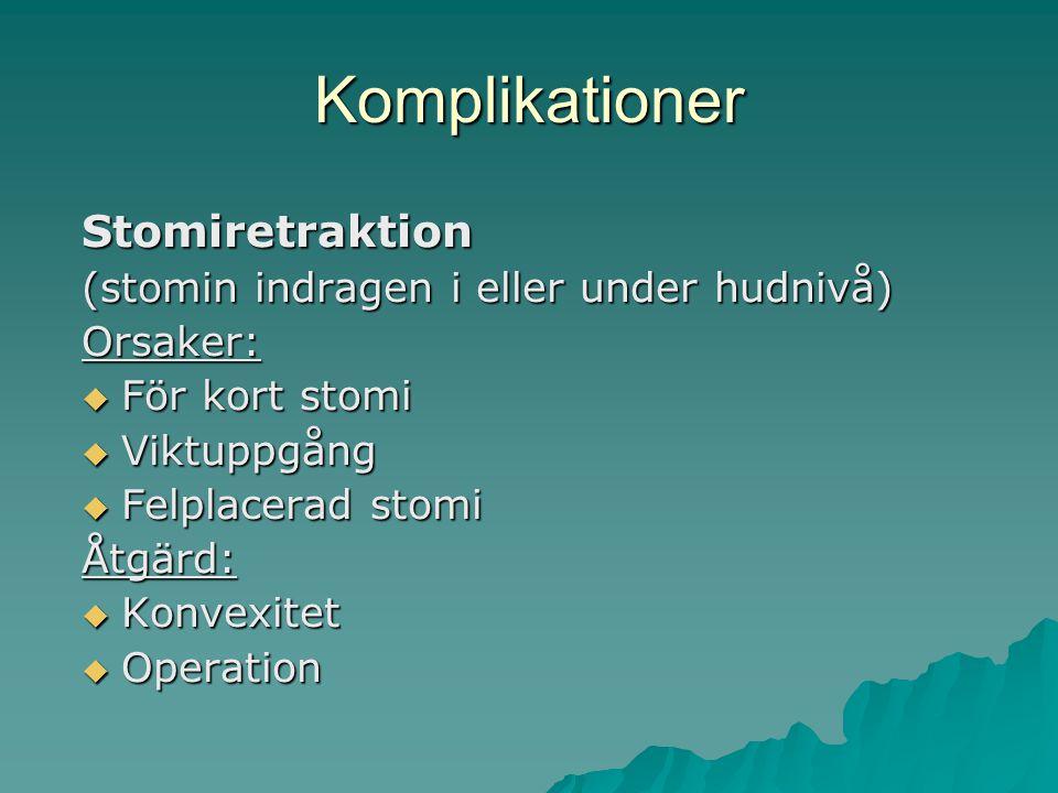 Komplikationer Stomiretraktion (stomin indragen i eller under hudnivå)