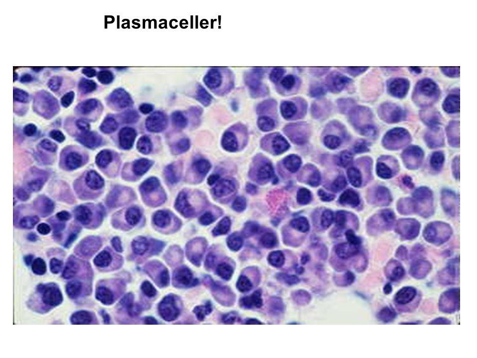 plasmaceller i blodet
