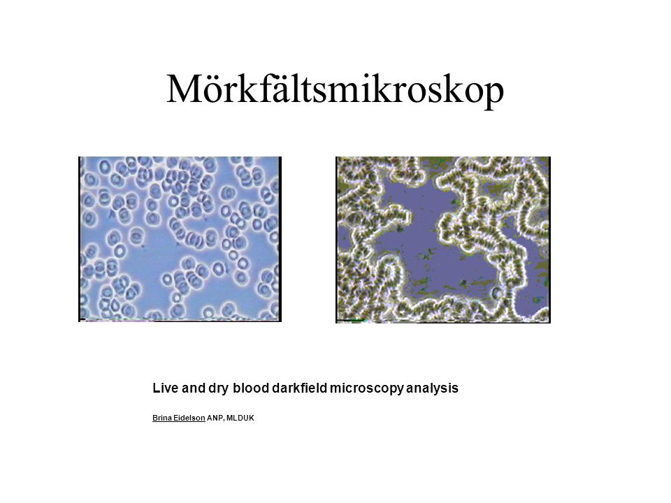 Mörkfältsmikroskop Live and dry blood darkfield microscopy analysis