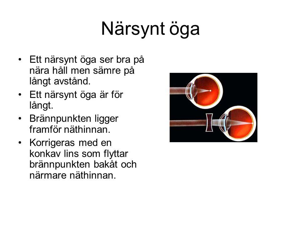 Närsynt öga Ett närsynt öga ser bra på nära håll men sämre på långt avstånd. Ett närsynt öga är för långt.
