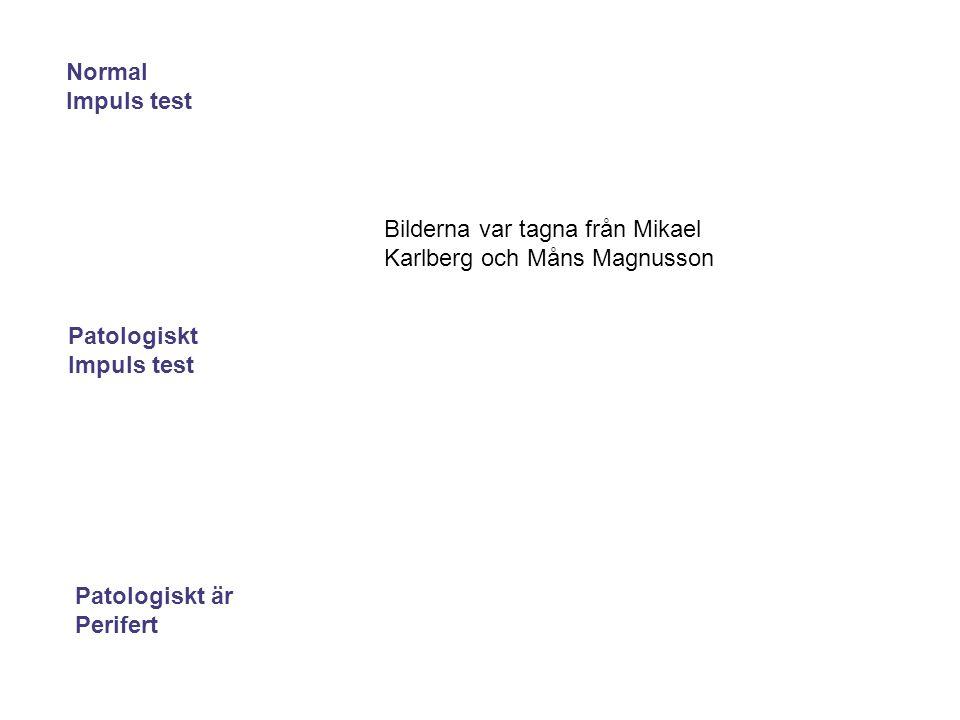 Normal Impuls test. Bilderna var tagna från Mikael Karlberg och Måns Magnusson. Patologiskt. Impuls test.