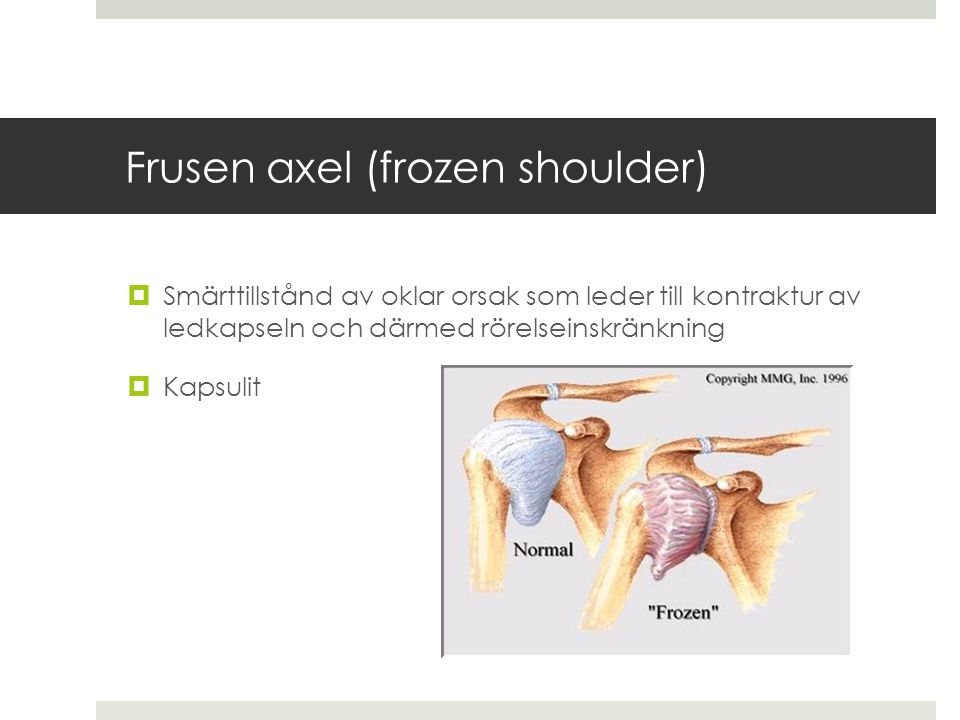Frusen axel (frozen shoulder)