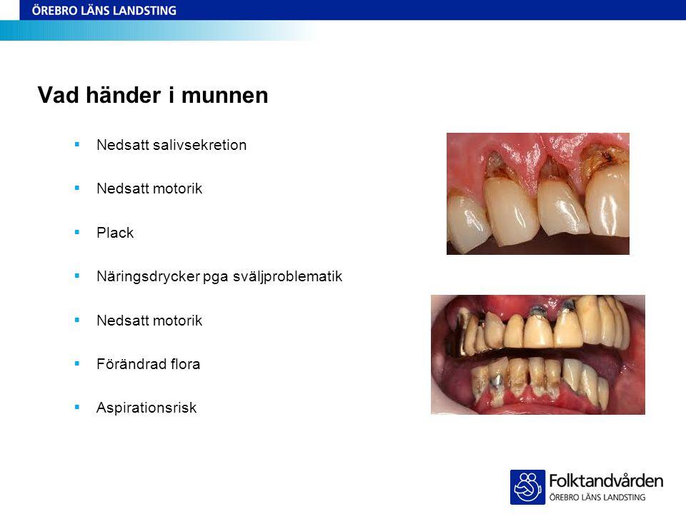 Vad händer i munnen Nedsatt salivsekretion Nedsatt motorik Plack