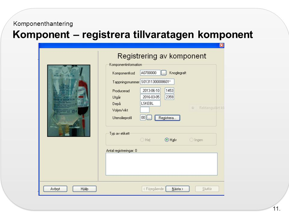 Komponent – registrera tillvaratagen komponent