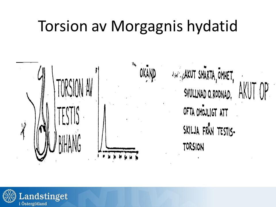 Torsion av Morgagnis hydatid