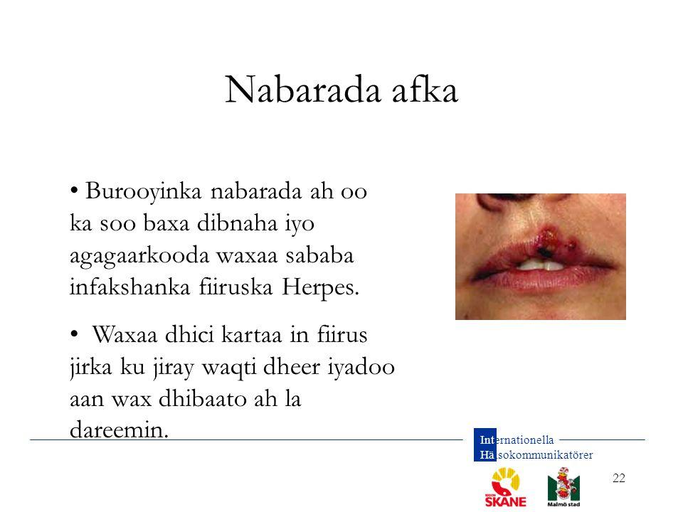 Nabarada afka Burooyinka nabarada ah oo ka soo baxa dibnaha iyo agagaarkooda waxaa sababa infakshanka fiiruska Herpes.