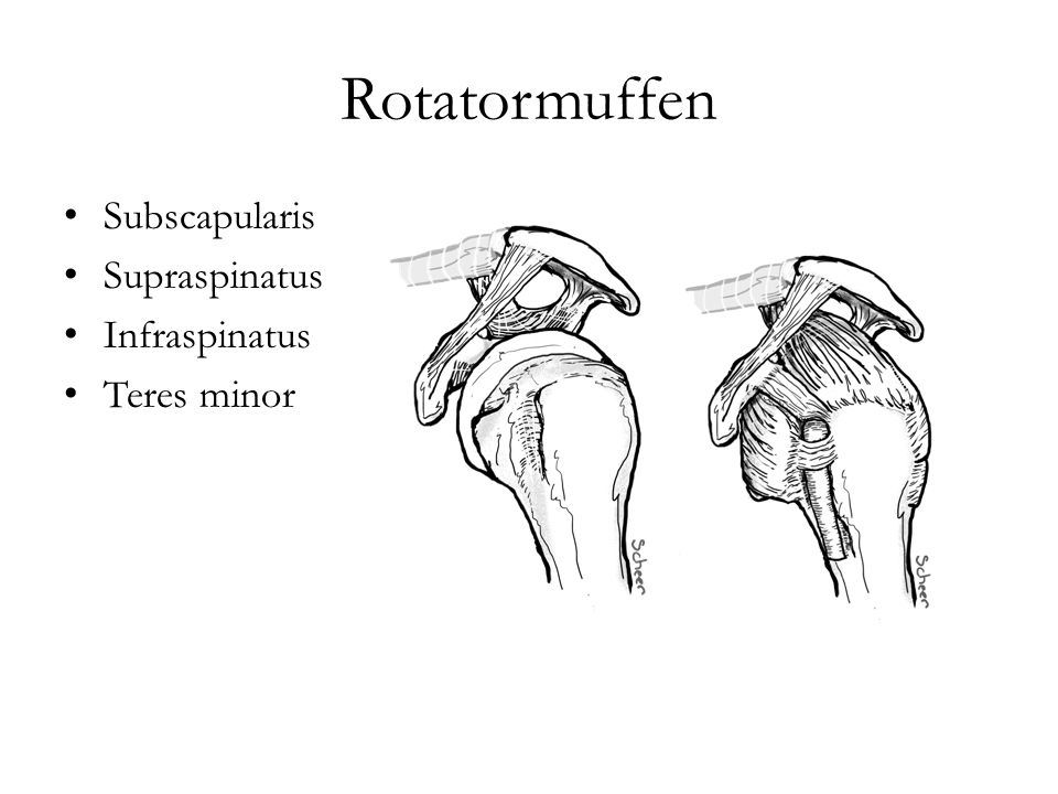 Rotatormuffen Subscapularis Supraspinatus Infraspinatus Teres minor