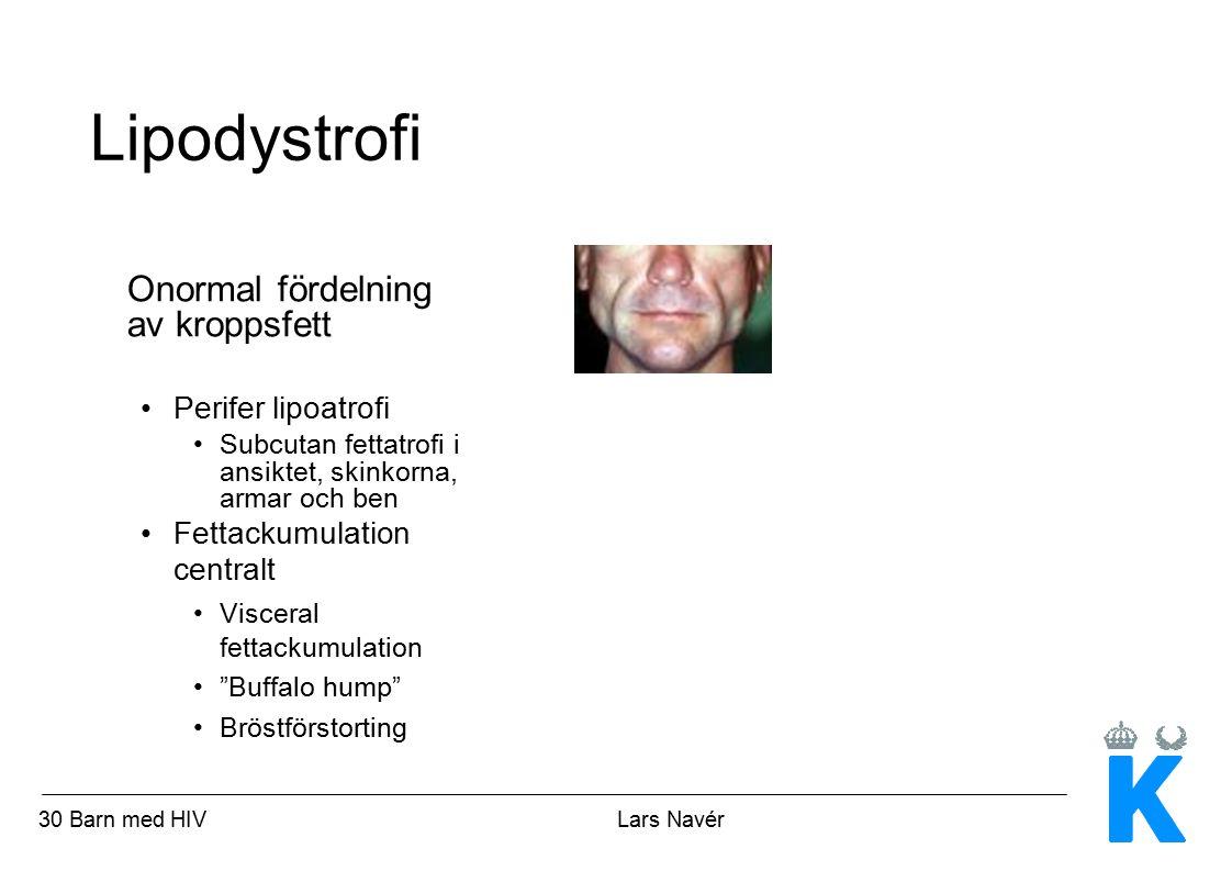 Lipodystrofi Onormal fördelning av kroppsfett Perifer lipoatrofi