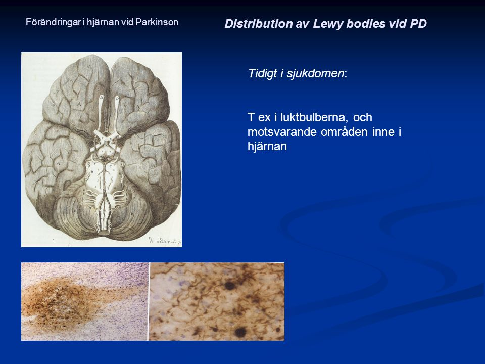 Distribution av Lewy bodies vid PD