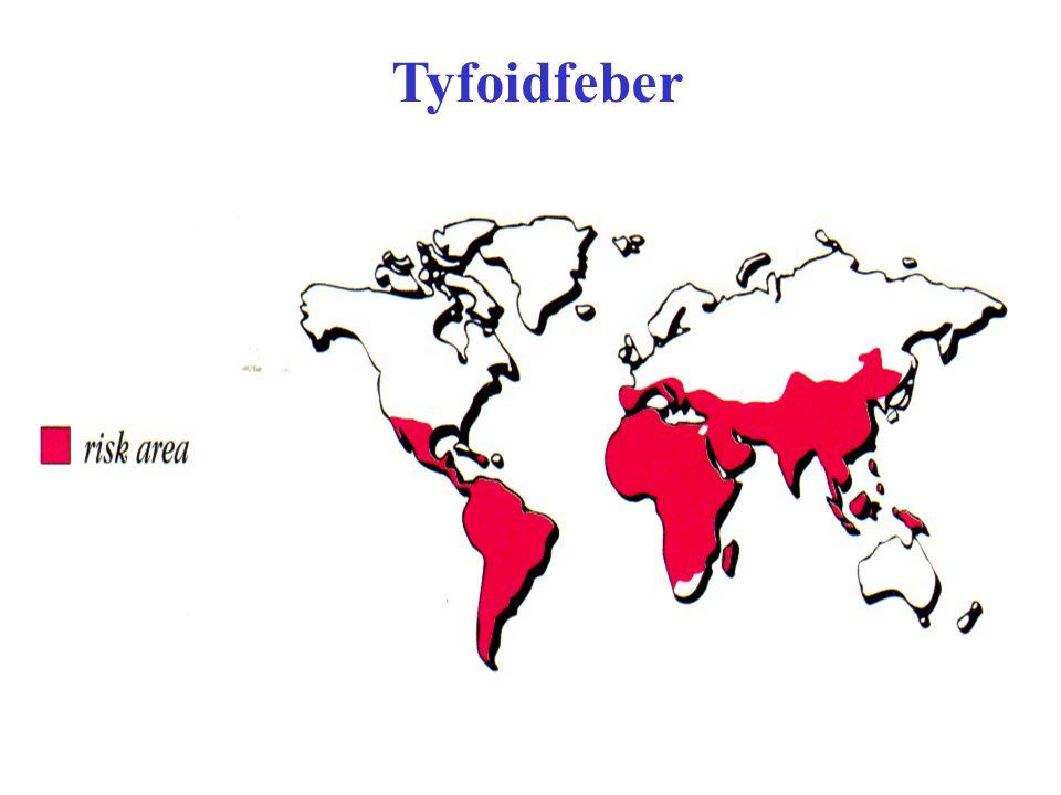 Tyfoidfeber