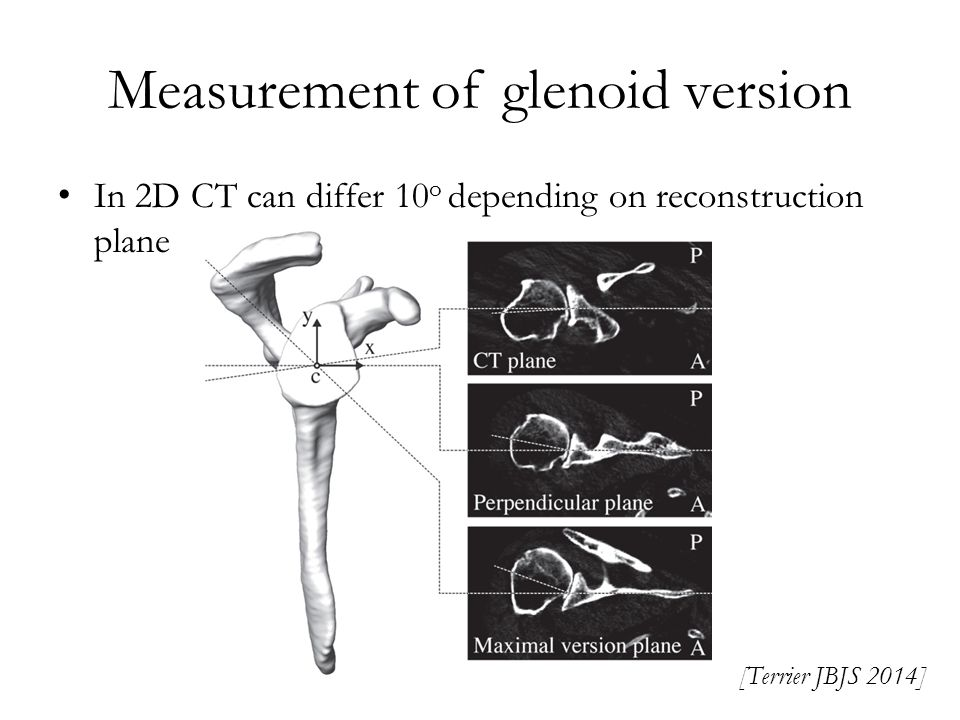 Measurement of glenoid version
