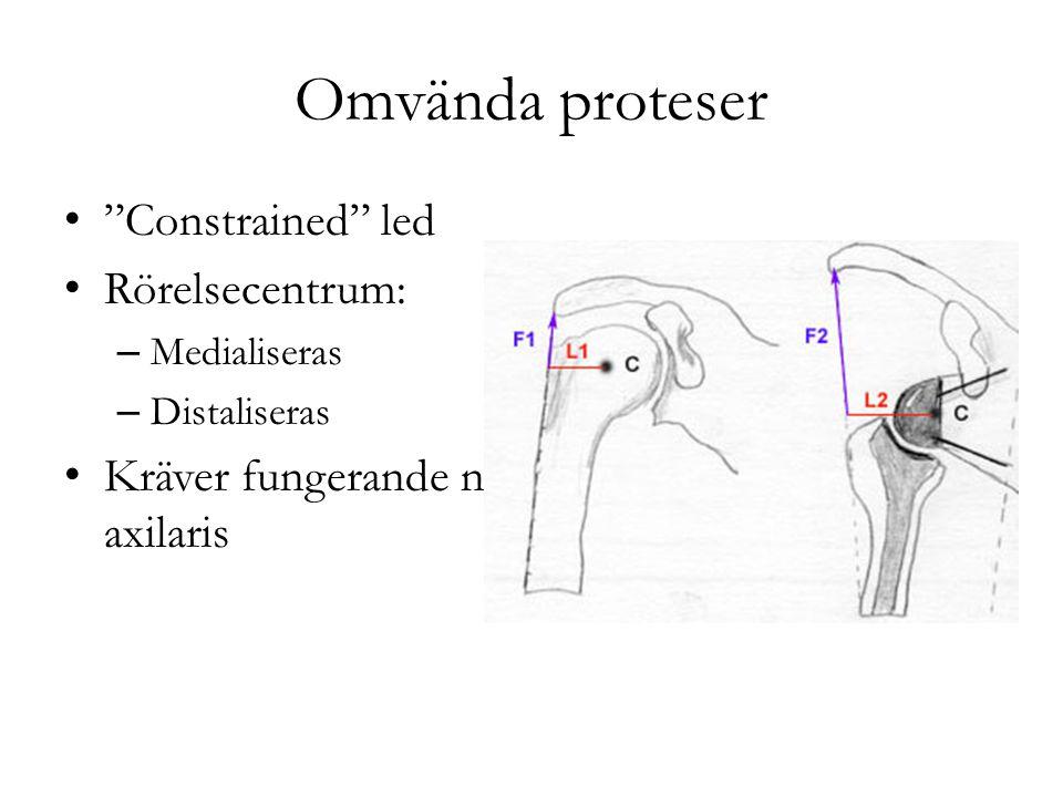 Omvända proteser Constrained led Rörelsecentrum: