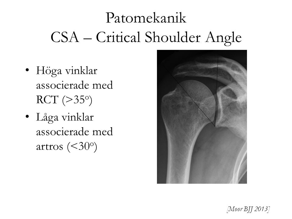 Patomekanik CSA – Critical Shoulder Angle