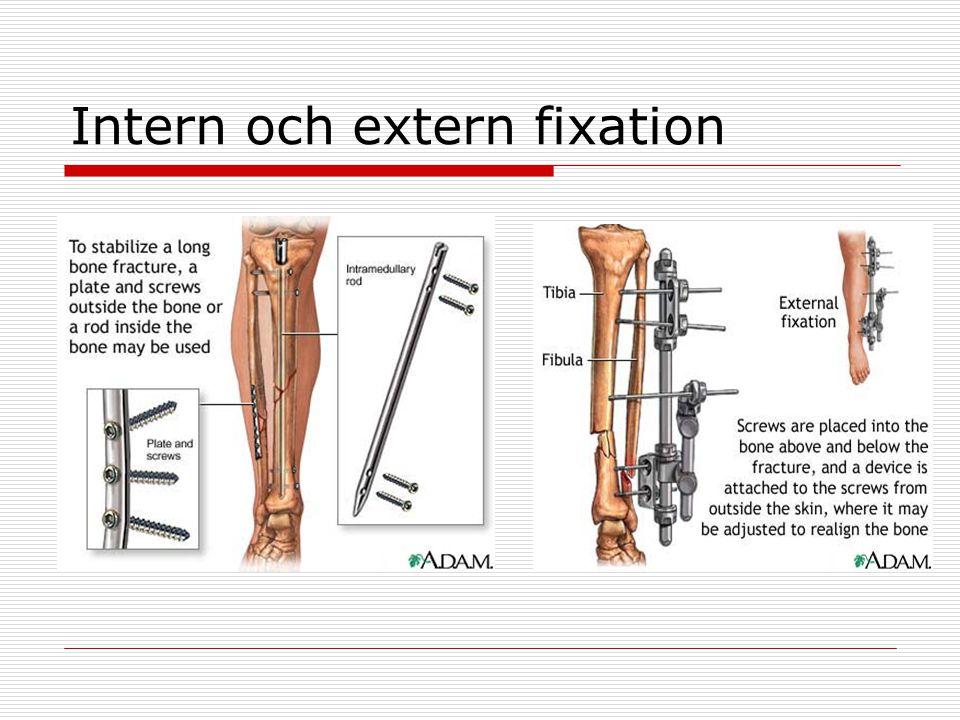 Intern och extern fixation