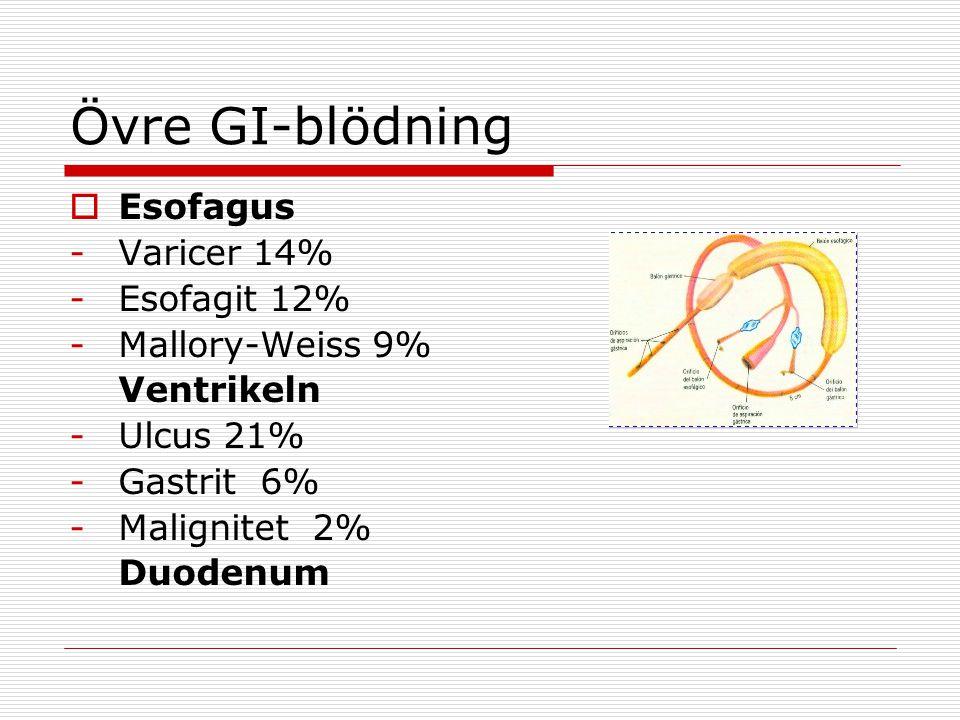 Övre GI-blödning Esofagus Varicer 14% Esofagit 12% Mallory-Weiss 9%