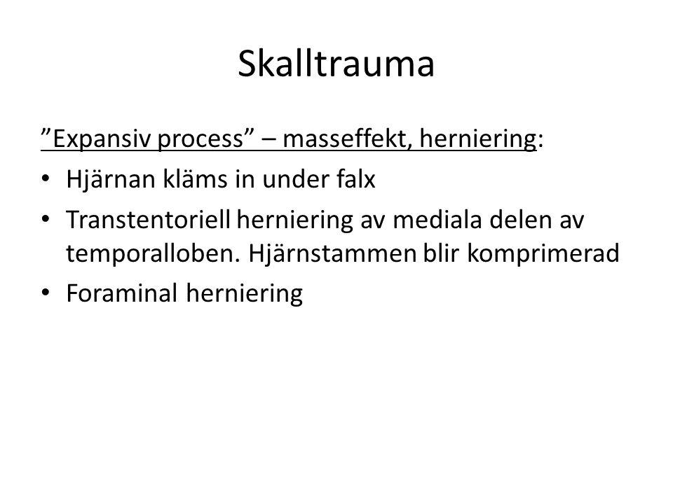 Skalltrauma Expansiv process – masseffekt, herniering: