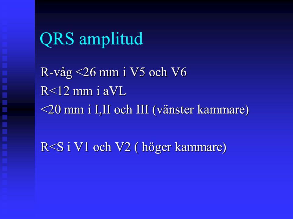 QRS amplitud R-våg <26 mm i V5 och V6 R<12 mm i aVL