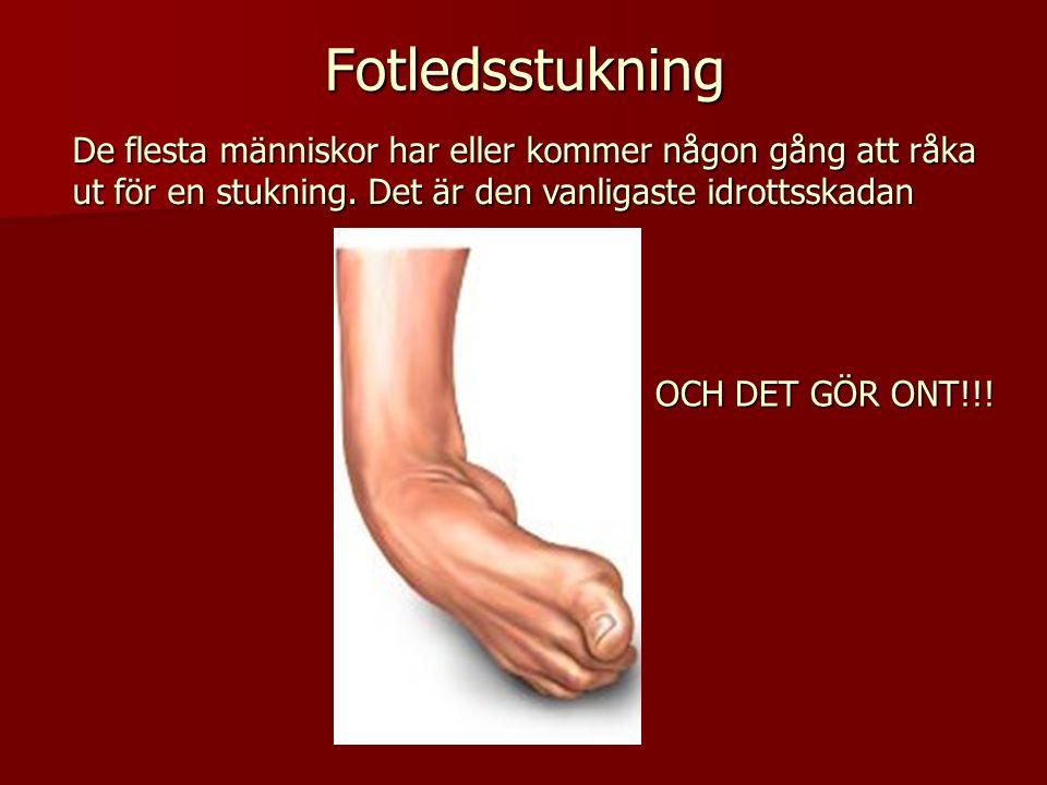 Fotledsstukning De flesta människor har eller kommer någon gång att råka ut för en stukning. Det är den vanligaste idrottsskadan.