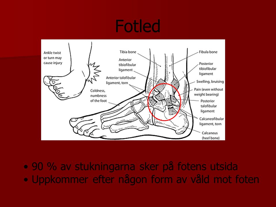 Fotled 90 % av stukningarna sker på fotens utsida