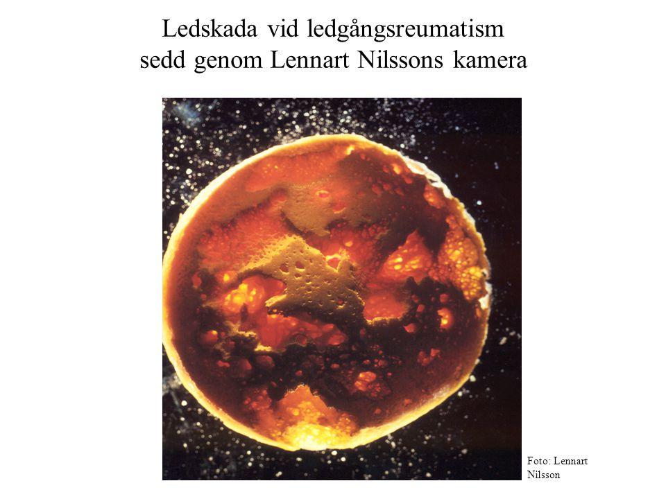 Ledskada vid ledgångsreumatism sedd genom Lennart Nilssons kamera