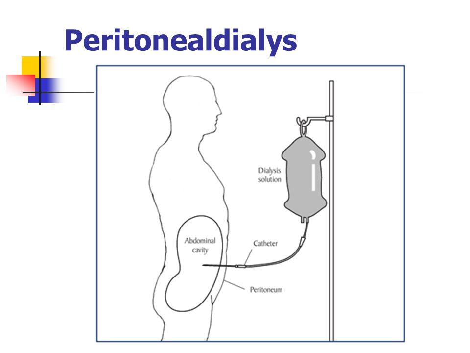 Peritonealdialys