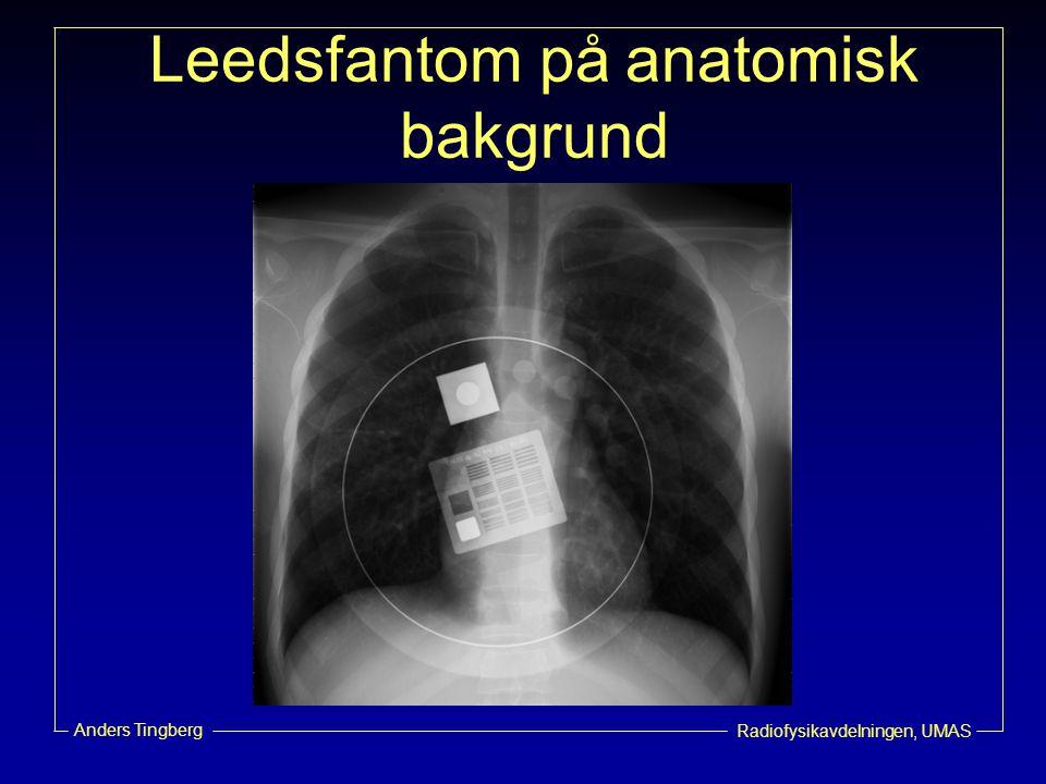 Leedsfantom på anatomisk bakgrund