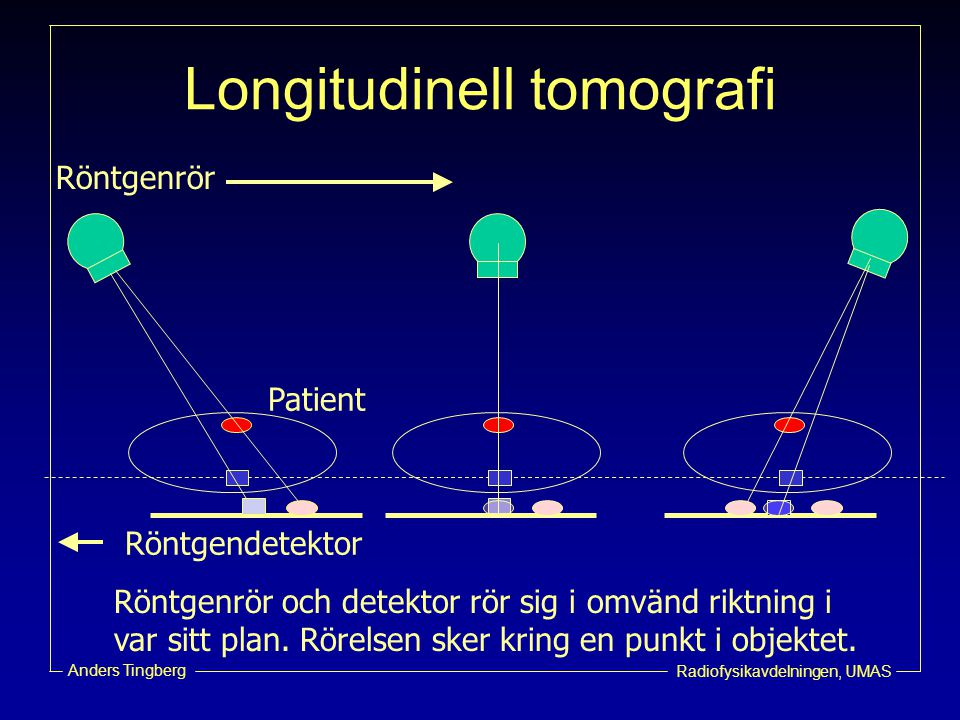 Longitudinell tomografi