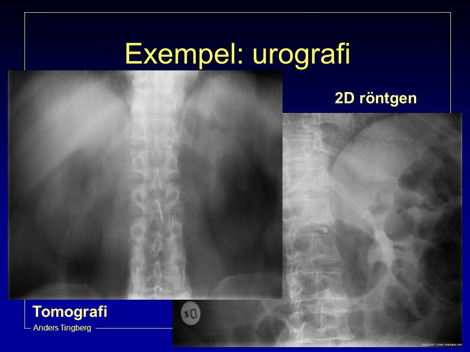 Exempel: urografi 2D röntgen Tomografi