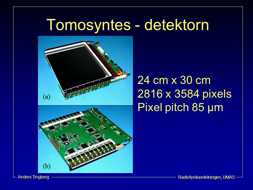 Tomosyntes - detektorn