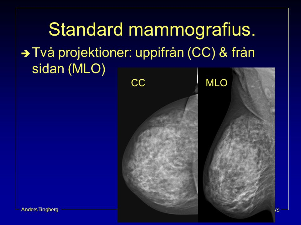 Standard mammografius.