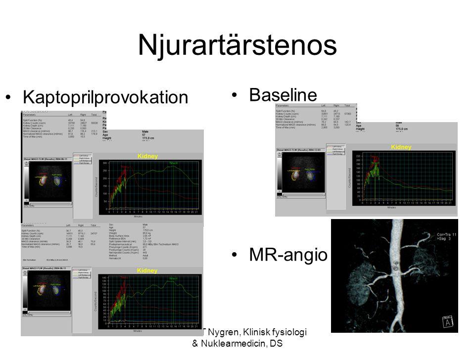 Anders T Nygren, Klinisk fysiologi & Nuklearmedicin, DS