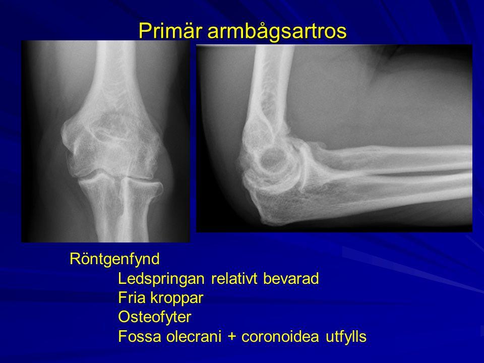 Primär armbågsartros Röntgenfynd Ledspringan relativt bevarad