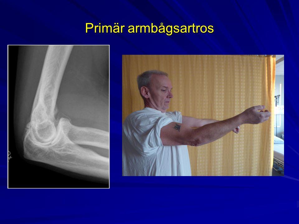 Primär armbågsartros 57-årig tidigare hamnarbetare med ROM 40-115, smärta i extension – handen i fickan vid promenad.