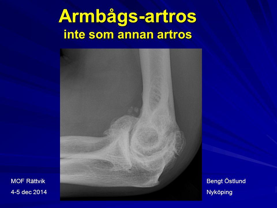 Armbågs-artros inte som annan artros
