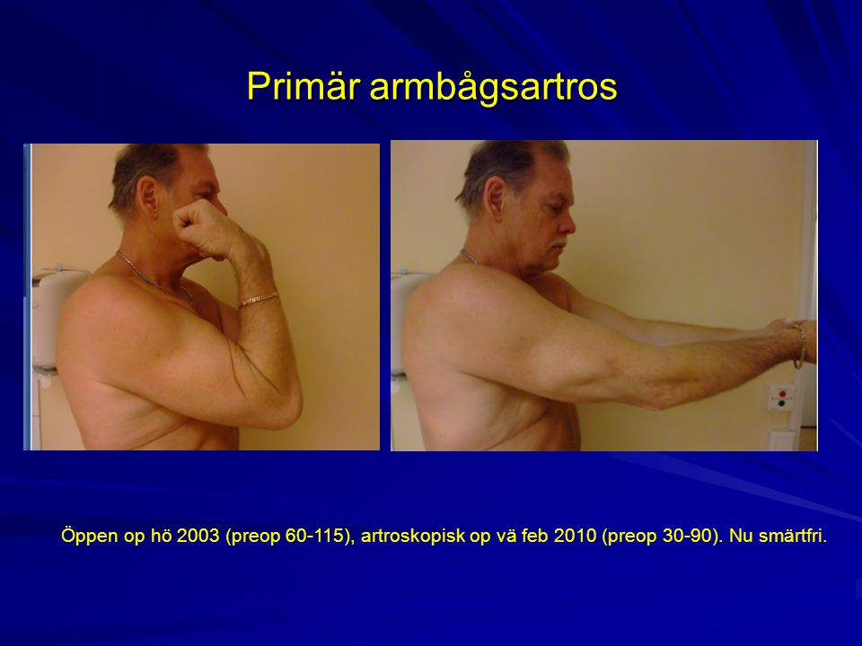 Primär armbågsartros Öppen op hö 2003 (preop 60-115), artroskopisk op vä feb 2010 (preop 30-90).