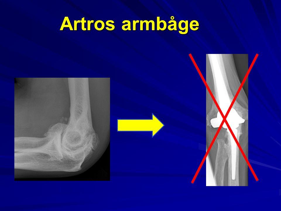 Artros armbåge