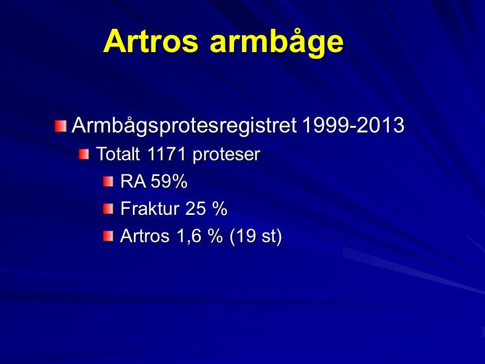 Artros armbåge Armbågsprotesregistret 1999-2013 Totalt 1171 proteser