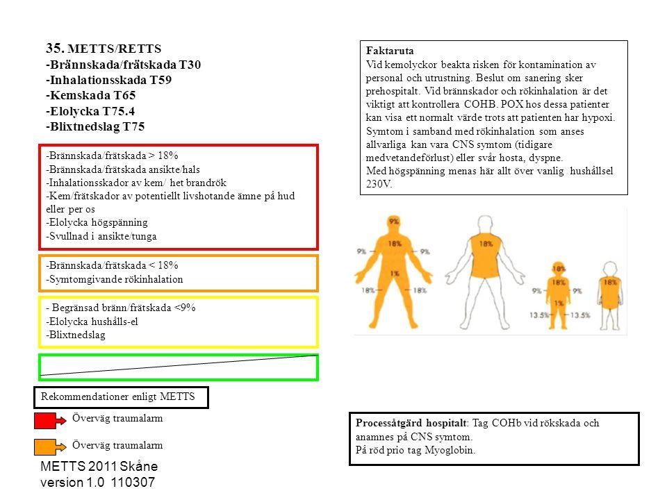 35. METTS/RETTS Brännskada/frätskada T30 Inhalationsskada T59
