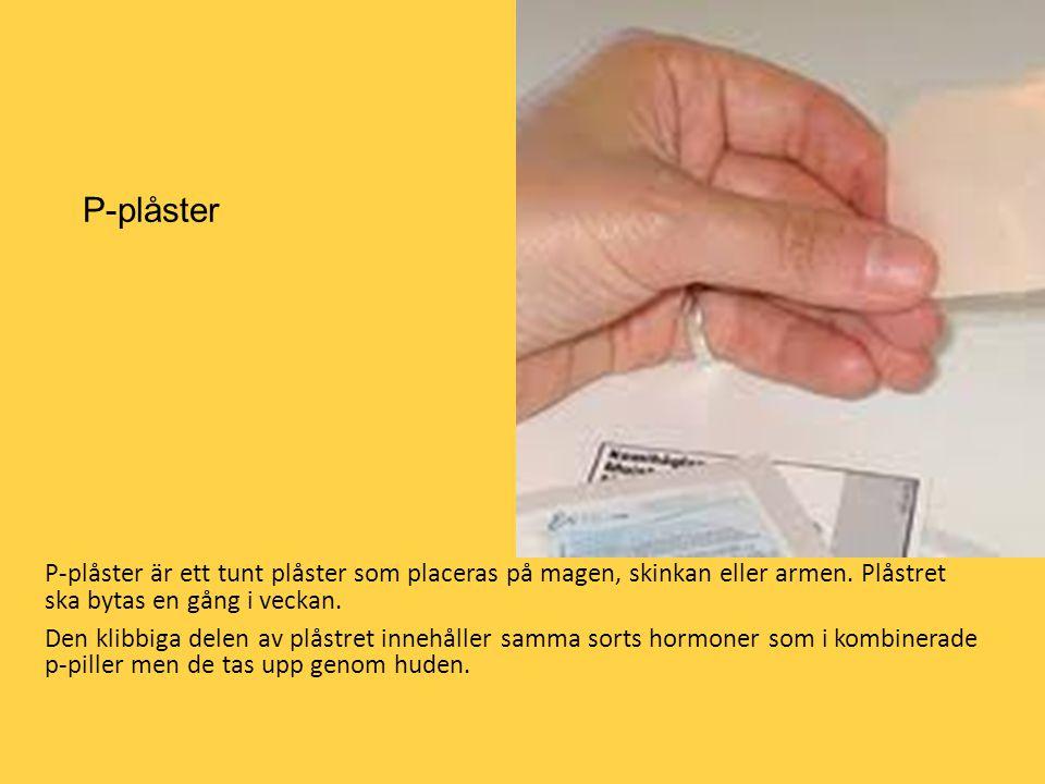 P-plåster P-plåster är ett tunt plåster som placeras på magen, skinkan eller armen. Plåstret ska bytas en gång i veckan.