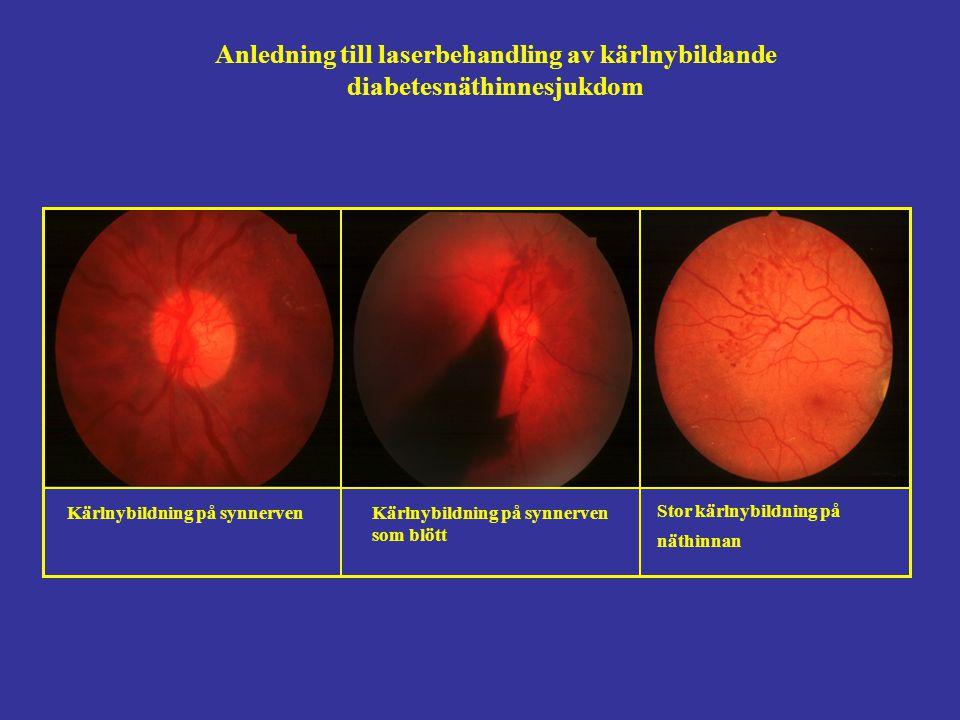 Anledning till laserbehandling av kärlnybildande
