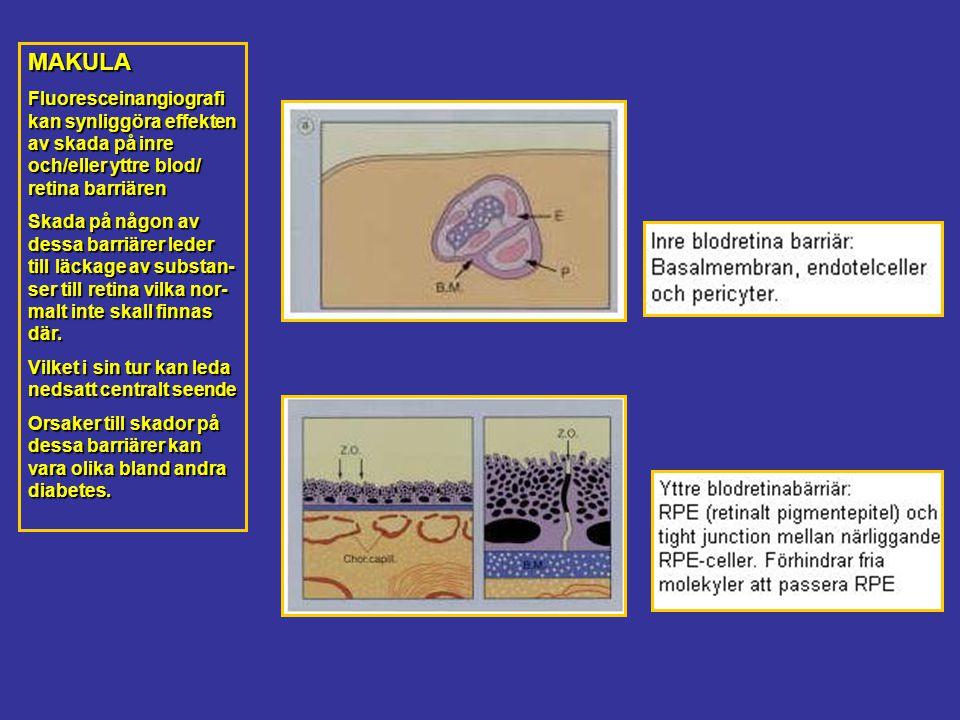 MAKULA Fluoresceinangiografi kan synliggöra effekten av skada på inre och/eller yttre blod/ retina barriären.